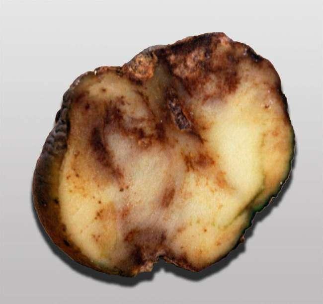 Болезни картофеля: Бурая гниль или Фитофтороз